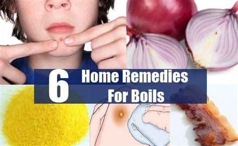 17 best images about home remedies on faster
