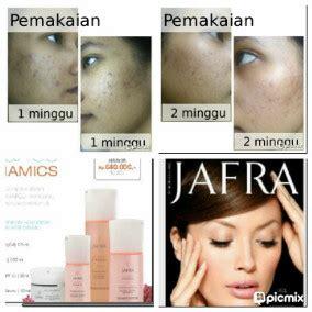 Bedak Jafra testimoni jafra jafra herbal atasi berbagai masalah kulit