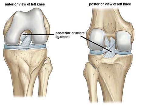cruciate ligament tear posterior cruciate ligament injury