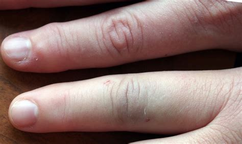 s swollen the patient s right index finger was swollen with tophi images frompo
