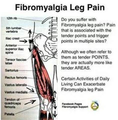fibromyalgia points tenderness diagram 1000 images about fibromyalgia the green monstor on