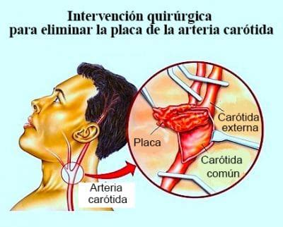 kinking carotide interna sintomi estenosis carot 237 dea asintom 225 tica s 237 ntomas doppler