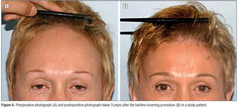 high hairline for woman pics hair procedures for women with a high forehead regrow
