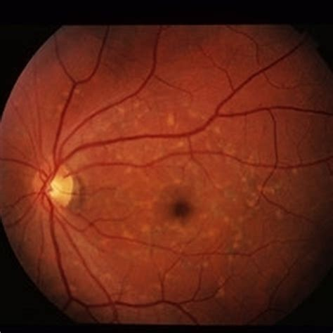 pattern dystrophy reticular discover images retina image bank