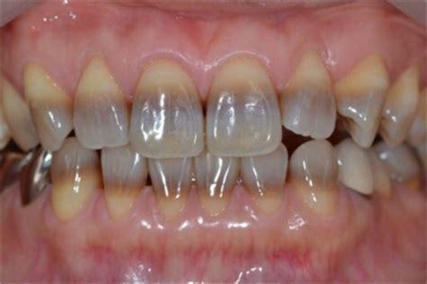 teeth whitening lindsten family dentistry