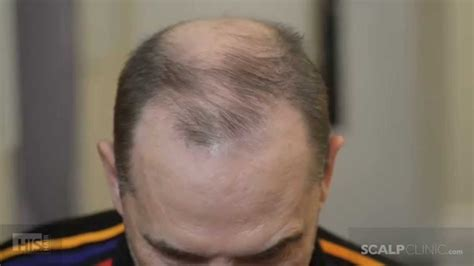 male pattern baldness youtube male pattern baldness cure scalp micropigmentation at