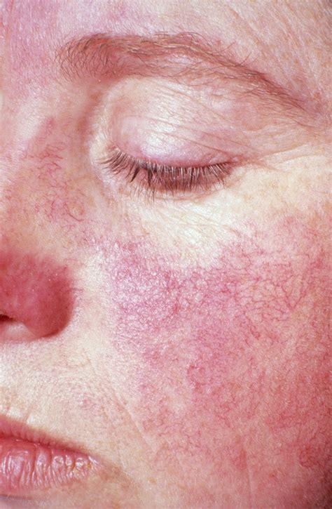 rashes lupus symptoms in women multimedia national institutes of health nih