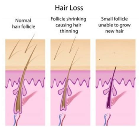 what cause hair loss all about hair loss female hair loss and thyroid problems