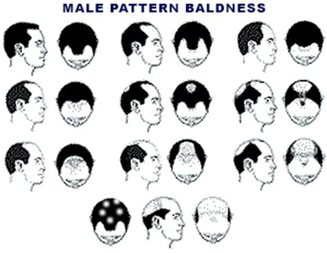 male pattern baldness image hair replacement for men male pattern baldness