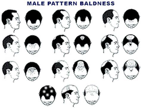 male pattern baldness artinya hair replacement for men male pattern baldness