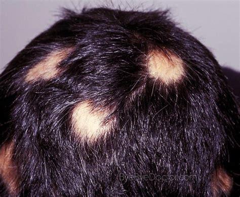 alopecia areata causes alopecia areata treatment causes symptoms pictures