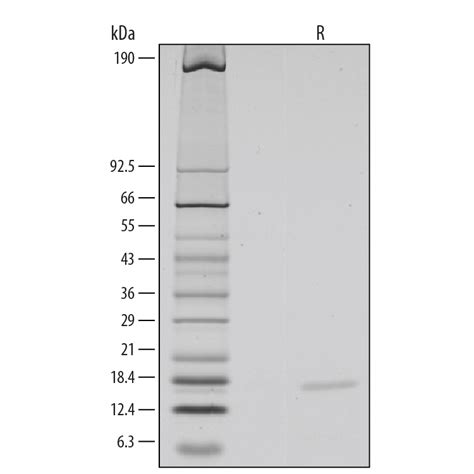 protein 40 reviews recombinant mouse il 10 protein 417 ml 005 r d systems