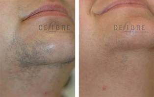laser hair removal photos laser hair removal before and after pictures 5