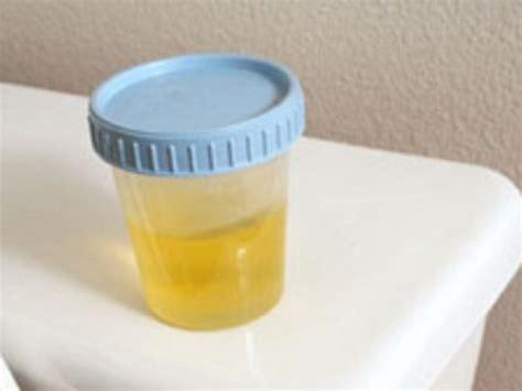 batteri a tappeto nelle urine l urina non 232 sterile anzi i batteri possono essere causa