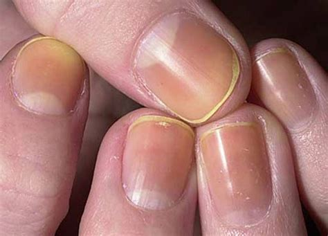 11 things your nails are trying to tell you about your health 10 things your fingernails are trying to tell you