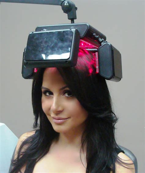 laser light therapy for hair hair loss