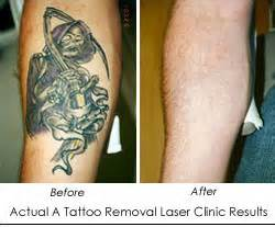 laser tattoo removal clinic salutes the brave men and