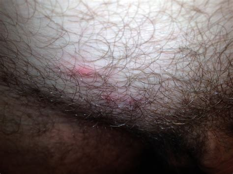 red crotch hair i noticed 3 red pimple like bumps this morning on my pubic