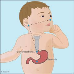 insertion of gastric feeding tube flashcards | quizlet