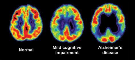 l alzheimer porta alla morte www ladigetto it alzheimer malattia e problema sociale