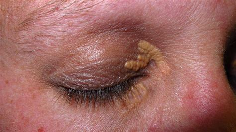 Xanthelasma Images xanthelasma treatment causes photo and more