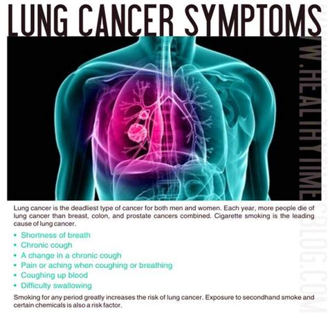 lung cancer diagram lungs anatomy diagram lung cancer lung cancer diagram