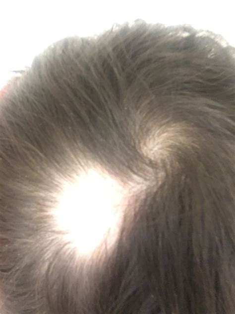 bald spot on sudden bald spots on bald spots on pictures to pin on pinsdaddy