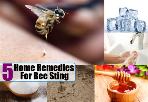 bee sting home remedies treatments cure