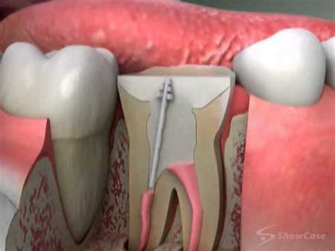 diy root canal crowns post and procedure