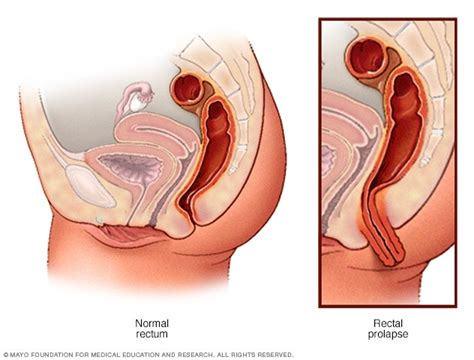 why anal pain rectal prolapse surgery overview mayo clinic