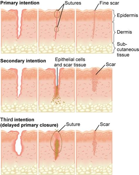 Pics Of Small Brain Surgery Cuts Healing | 25 best ideas about wound healing on pinterest natural