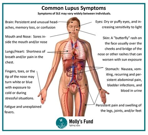 lupus can this autoimmune disease be treated naturally woman of faith hope and lupus