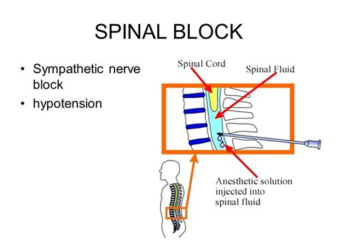 how long does a spinal block last for c section last prevention and treatment ppt video online download