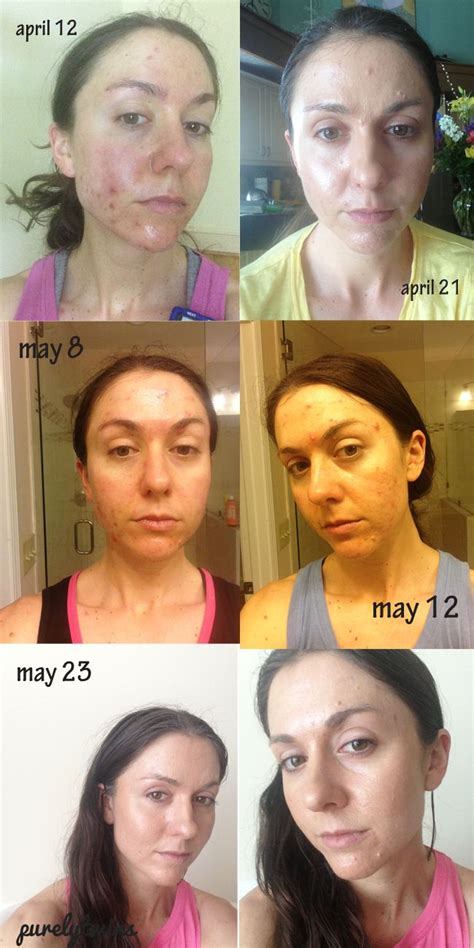 5 supplements that healed my acne 1000 images about acne free tips on before