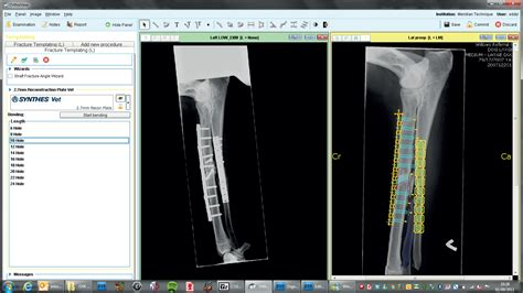 orthopedic templating software software