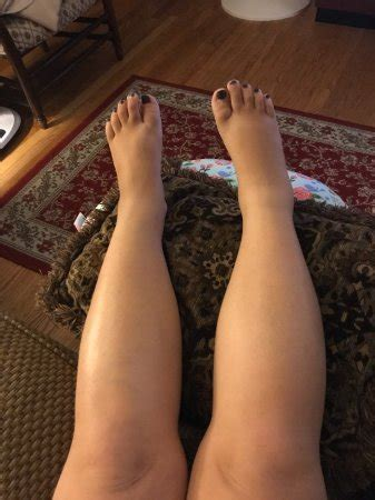 leg swelling post c section ways to reduce swelling after c section how to reduce