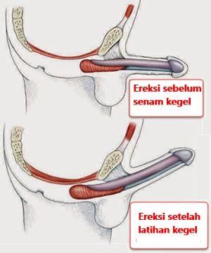 tutorial gambar senam kegel cara melakukan senam kegel menyembuhkan ejakulasi dini
