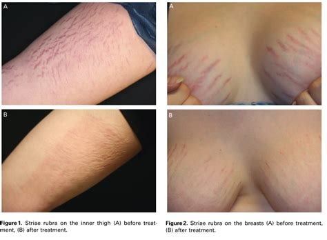 Bio Stretch Marks musely