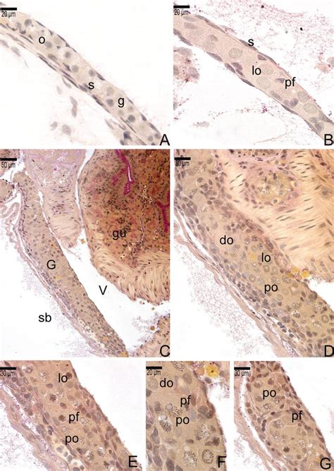 parasagittal section ovary differentiation and activity in teleostei fish