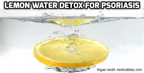 Liver Detox And Psoriasis by Lemon Water Detox For Psoriasis Psoriasis Self Management