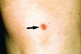 scaley lesion ulcer face cutaneous sarcoidosis a dermatologic masquerader