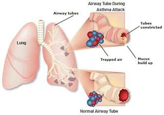 asthma diagram asthma treatment