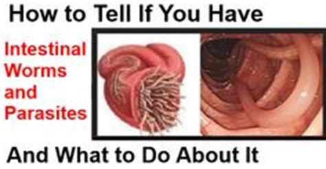 how to tell if a has worms 1000 images about parasites on parasite cleanse giardia lamblia and worms