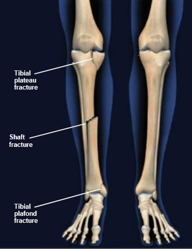 tibia fracture | symptoms, diagnosis and treatment