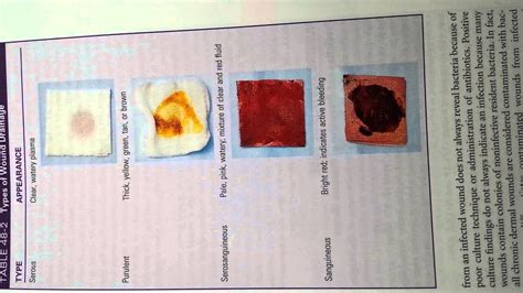 serosanguineous drainage color list of synonyms and antonyms of the word serous drainage