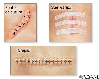 how to remove steri strips after c section cierres de incisiones medlineplus enciclopedia m 233 dica
