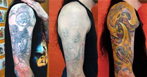 laser tattoo removal brisbane clinic westside dermatology