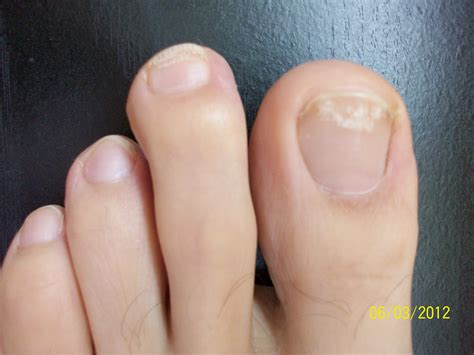 nail bed fungus discolored toenails get rid of yellow toenails