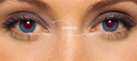 Crrante Eye Make Up Remover remove eye in a photo whiten and make them sharp