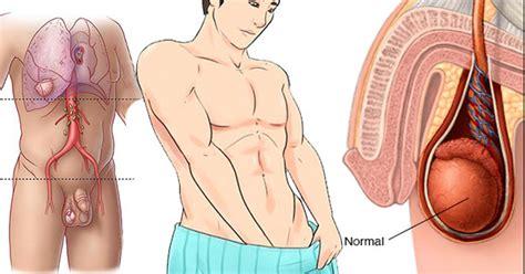 imagenes ganglios ingle 10 s 237 ntomas del c 225 ncer testicular que nunca debes ignorar